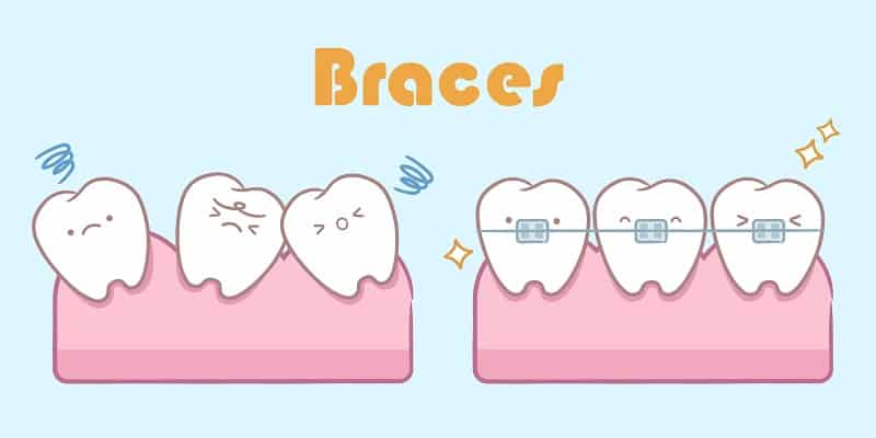 How Long Do Braces Take to Straighten Teeth? - Harold P ...